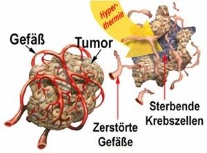 hyperthermie, künstliches Fieber, Krebsforschung, Gregor Schäfer