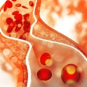 Cholesterin, HDL, LDL, Cholesterinsenker, Statine, Pflanzenstatine, Simva, Simvastatin